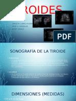 tiroides presentacion 2