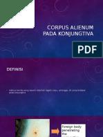 Corpus Alienum Pada Konjungtiva