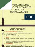 Presentacion Leaks Paraval