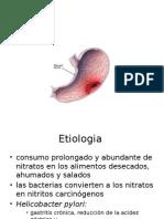 etiología de cáncer gástrico o cáncer de estómago