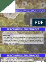 Reacciones leucemoides