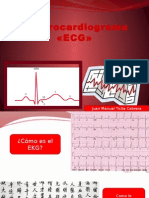 EKG--JGS