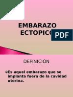 EMBARAZO_ECTOPICO