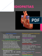 tipos de cardiopatias