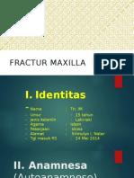 Fraktur Maxila