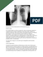 Radiografía de Torax Posteroanterior