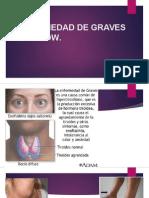 ENFERMEDAD DE GRAVES BASEDOW.pptx