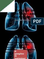 Estadiaje de Un Paciente Con Cancer Pulmonar