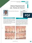 Fichas.pdf Incision Semilunar