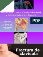 Fractura de Clavícula Cabeza Humeral y Tercio