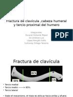 Fractura de Clavícula ,Cabeza Humeral y Tercio