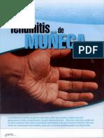 Tendinitis de Muñeca