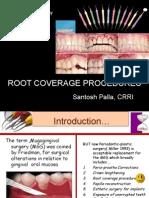 Root Coverage Procedures Sant