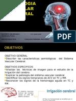Semiologia Vascular Cerebral.