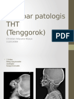 Gambar Patologis THT Tenggorok Christian