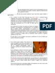 Usos y Aplicaciones Del Ácido Nítrico