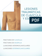 Fracturas de clavícula y escápula