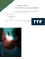 Informe de Exodoncia
