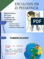 Tuberculosis Edad Pediatrica Manchay Intro