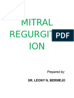 Mitral Regurgitation Sr.leony