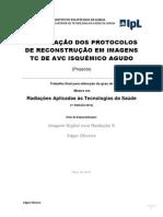 Optimização Dos Protocolos de Reconstrução Em Imagens TC de AVC Isquémico Agudo