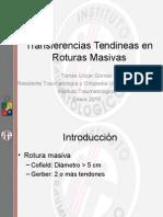 Transferencias y Roturas Masivas