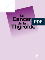 Cancer de la  Thyroide