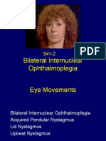Bilateral Internuclear Ophthalmoplegia