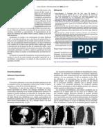 secuestro pulmonar 2.pdf