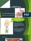 ulcera peptica +