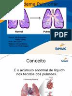 Edema Pulmonar 24-08
