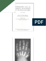 Edad ósea VARÓN