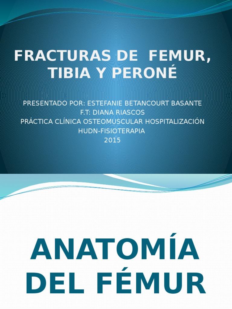 Fracturas de Femur Tibia y Peroné