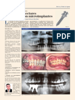 autoloigados y micro parafusos.pdf
