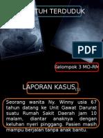 kompresi vertebra