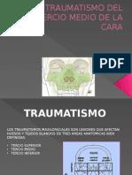 Traumatismodel Tercio Medio de La Cara