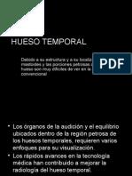 Hueso Temporal