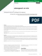 Melanoma Subungueal