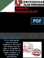 Evento Cerebrovascular - Exposicion