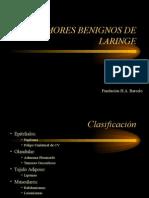 tumores+benignos+de+laringe