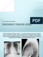 Radiografii Cord