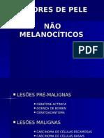 Lesões Não Melanocíticas