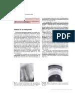 Radiografia Oral