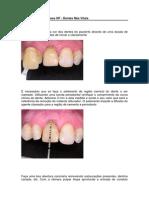 Caso Clínico - Clareamento Em Dente Não Vital