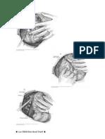 Colectomia Derecha