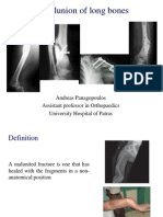 Malunions of Fractures