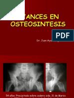 Avances_osteosintesis.ppt
