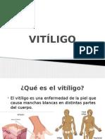 VITÍLIGO.pptx