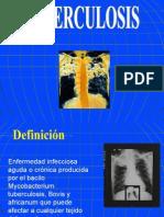 Tuberculosis , procesos pleurales, tromboembolismo