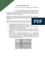 Electrocardiograma y CPK2-MB